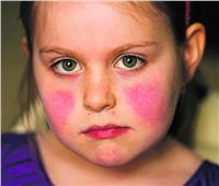 «القومي للبحوث» يوضح علاقة فيتامين د بمرض الذئبة الحمراء في الأطفال