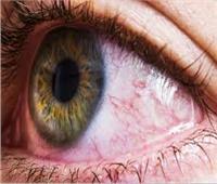 احذر.. «عينك» قد تكون دليلا على إصابتك بكورونا