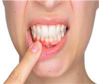 احذر | عادة يومية تُدمر صحة الأسنان وتهدد بتساقطها