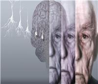 دراسة بالقومي للبحوث لتحسين العوامل المسببة لمرض الزهايمر