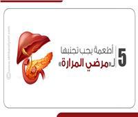 إنفوجراف  5 أطعمة يجب تجنبها لمرضى المرارة