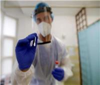 التشيك تسجل 17 ألفا و688 إصابات جديدة بفيروس كورونا المستجد