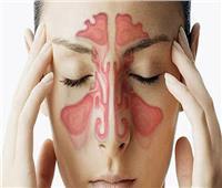 علاج التهابات الجيوب الأنفية بطريقة طبيعية 