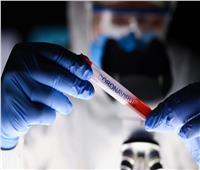 نشأت في الولايات المتحدة| البيت الأبيض يحذر من وجود سلالة جديدة لفيروس كورونا