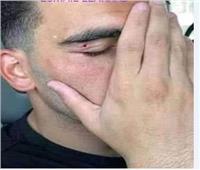 أنباء عن إصابة لاعب الزمالك في حادث سير