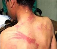 «كبلته وكشفت عورته».. الحكم في قضية الطفل «مازن» ضحية تعذيب زوجة والده