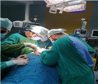 «فريق طبي» ينجح في توسيع القناة العصبية لربة منزل ببني سويف