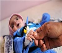 الصحة العالمية و«الملك سلمان للإغاثة» يواصلان مكافحة سوء تغذية أطفال اليمن