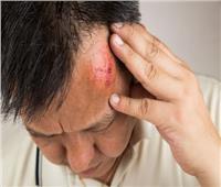 «تجربة البيض» تكشف ما يحدث لعقلك حين تعرضك لضربة بالرأس