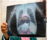 مصدر بـ«الصحة» يعلن موعد الموجة الثالثة لكورونا في مصر