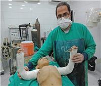 في «طب المنيا».. إجراء عملية جراحية نادرة لطفل مصاب بالعظم الزجاجي «صور»