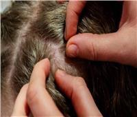 الخلوزيتالشايوالينسون.. 5وصفاتطبيعيةلعلاج«حشراتالرأس»عندالأطفال