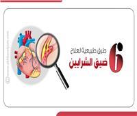 إنفوجراف| 6 طرق طبيعية لعلاج ضيق الشرايين