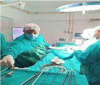 «صحة بالمنوفية»: استئصال مرارتين لسيدتين لأول مرة بمستشفي الناعورة  صور