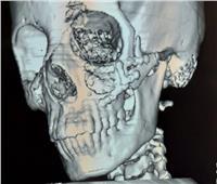 إنقاذ مصاب من تشوهات في الوجه بـ«جراحة دقيقة»