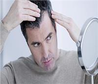 دراسة: مرضى كورونا يعانون من تساقط الشعر