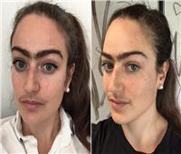 «المرأة الشارب»..دنماركية تتوقف عن إزالة الشعر الزائد | صور