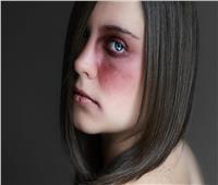 طريقة سريعة لعلاج كدمات الوجه.. تعرف عليها