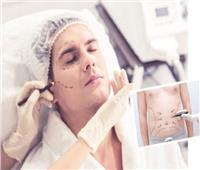 رجال على باب جراح التجميل الكبار يلجأون لـ «حقن الفيلر» لمحو آثار تقدم العمر