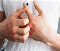 10 طرق طبيعية لعلاج «الإكزيما»