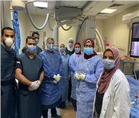 «قسطرة قلبية» تنقذ حياة 9 أطفال بـ«مستشفى طنطا التعليمي» بالمجان