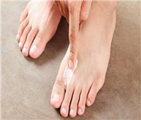 نصائح صحية| أسباب التهابات القدم الفطرية والوقاية منها.. والعلاج البديل