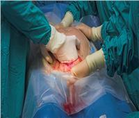 طبيب يجري عملية ولادة قيصرية لشاب بالخطأ ويصاب بصدمة
