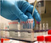 أطباء.. اختبار «الفوسفور» في الدم يكشف الإصابة بأمراض خطيرة