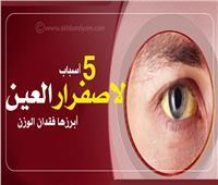 إنفوجراف| 5 أسباب لإصفرار العين.. أبرزها فقدان الوزن