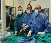 قسطرة متناهية الصغر تنقذ حياة مريض من سدة الشريان التاجي بـ«مستشفى طنطا»