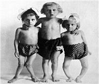 وصفة مصرية صدرت في خمسينيات القرن الماضي تقي الأطفال من «الكساح»