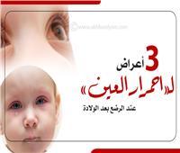 إنفوجراف| 3 أسباب لـ«احمرار العين» عند الرضع بعد الولادة