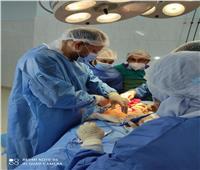 إجراء عمليتي استئصال ورم سرطاني بمستشفي السعديين بالشرقية
