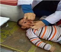 صور  1350 فريق لتطعيم نصف مليون طفل ضد شلل الأطفالبقنا