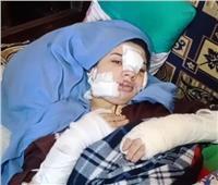 ضحية العنف الأسري بالإسكندرية: «جزائي أني بصون جوزي.. تقطيع جسمي»