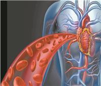 عميد معهد القلب: مصر الأعلى فى أمراض تصلب الشرايين بسبب ارتفاع الكوليسترول