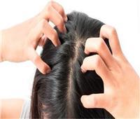 خلطة الخردل للتخلص من قشرة الشعر
