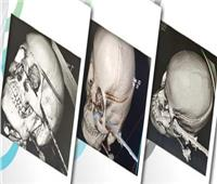 إنقاذ حياة طفلة بعد استخراج «سيخ حديدي» من رأسها في بورسعيد