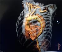 إجراء أول حالة «تيفار» بمركز جراحة الأوعية الدموية بجامعة المنصورة
