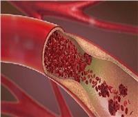 """طبيب روسي يكشف أعراض خطيرة لارتفاع """"كوليسترول"""" الدم"""