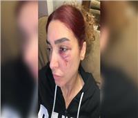 روجينا تتصدر تريند تويتر بعد إصابتها في «بنت السلطان»