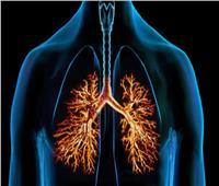 حسام موافي: التدخين يسبب التهاب الشعب الهوائية | فيديو