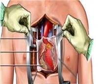 هل إجراء عملية قلب مفتوح لمسن يبلغ 70 عاما يمثل خطراً؟.. «موافي» يجيب