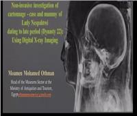 شاهد الأشعة السينية لمومياء نسبا حتوي من الأسرة ٢٢