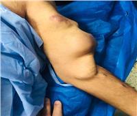 مستشفى المنيرة تنقذ مريضا من خطر الإصابة بانفجار شرياني