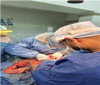 انقاذ مريض كورونا من انفجار الإثني عشر في مستشفى بطنطا