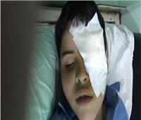 طالب يفقد عينه بضربة «مفك» في الدقهلية