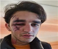 «حطب»: محمد زيادة يغادر المستشفى.. ويشارك بمنافسات الفروسية رغم الإصابة
