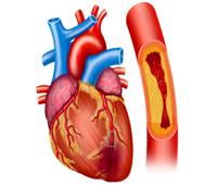 «عميد القلب السابق»: لقاح كورونا يصلح لمرضى ضيق الشريان التاجي