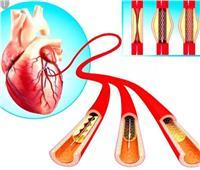 حسام موافي : قسطرة القلب أشعة في 10 دقائق وليست عملية جراحية | فيديو